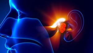 Аденоидит, воспаленные аденоиды